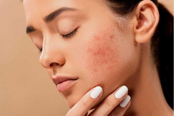 kulit acne prone